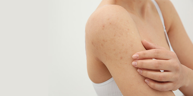Bệnh viêm nang lông có tự hết không?