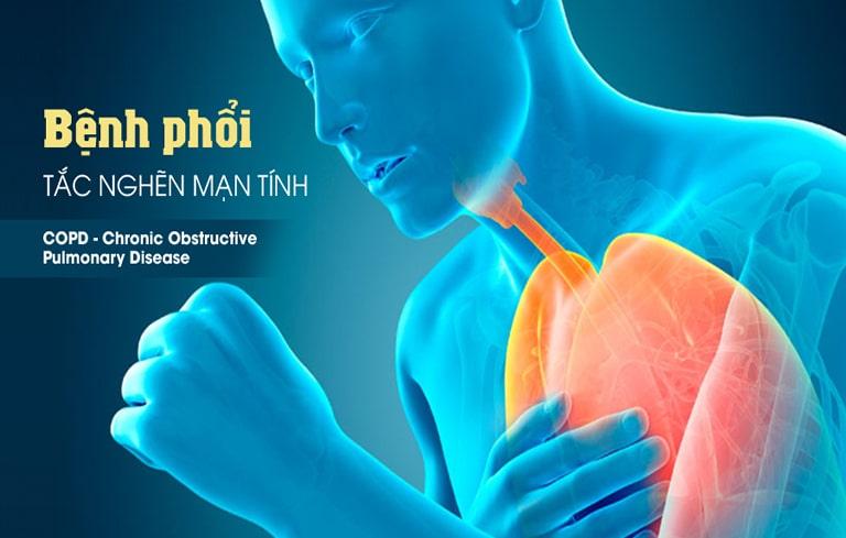 COPD hay bệnh phổi tắc nghẽn mãn tính là một biến chứng nguy hiểm của bệnh viêm phế quản.