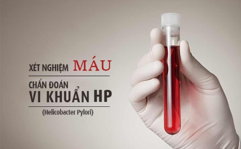 Xét nghiệm vi khuẩn HP nhanh chóng bằng máu