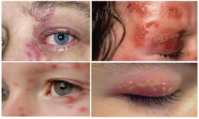 Triệu chứng của bệnh zona thần kinh ở mắt