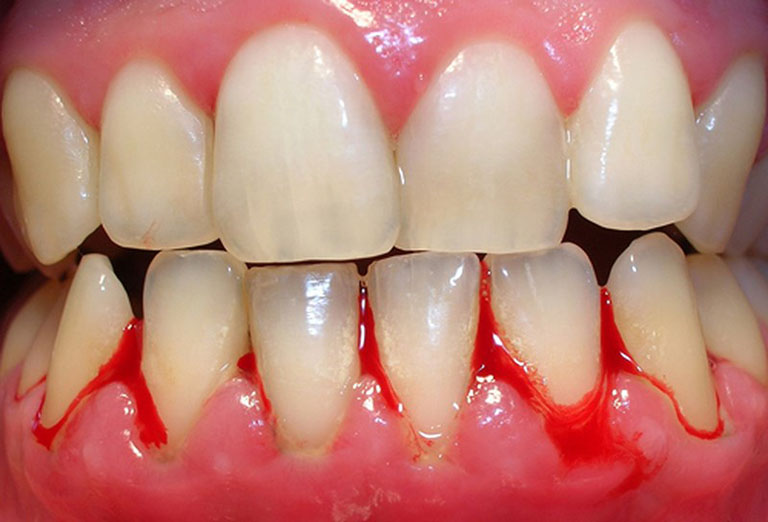 Chảy máu chân răng là tình trạng xảy ra khá phổ biến do rất nhiều nguyên nhân khác nhau