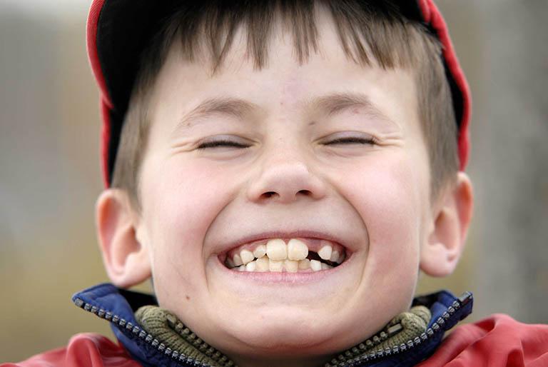 Nguyên nhân gây áp xe chân răng ở trẻ