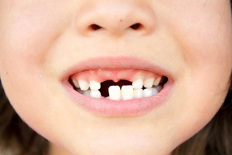 Mức độ nguy hiểm của bệnh áp xe chân răng ở trẻ