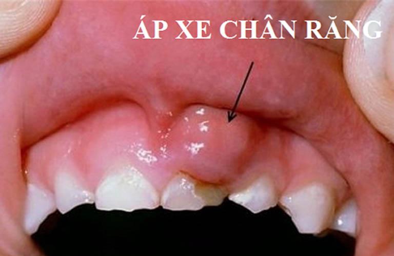 Áp xe chân răng ở trẻ - Dấu hiệu và cách điều trị sớm