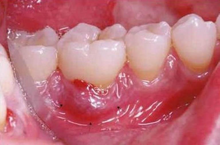 Bệnh áp xe răng không thể tự khỏi