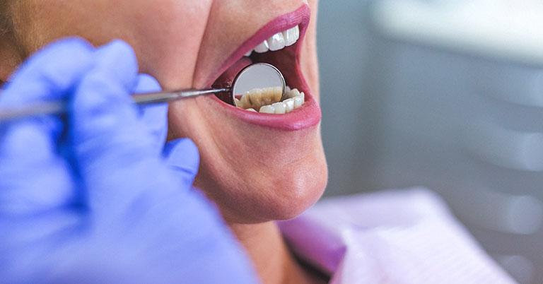 Áp xe vùng lợi chân răng