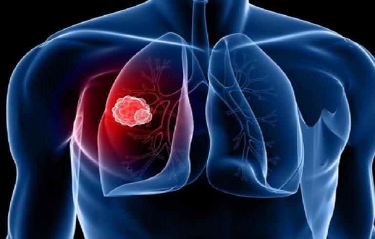 Áp xe phổi, một bệnh lý phổ biến ở nhiều người
