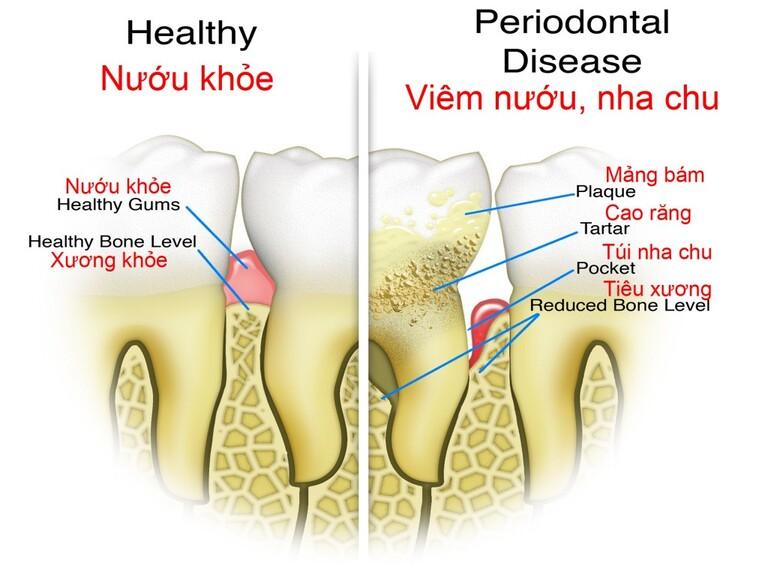 Răng và nướu của người bình thường với người bị viêm nha chu.