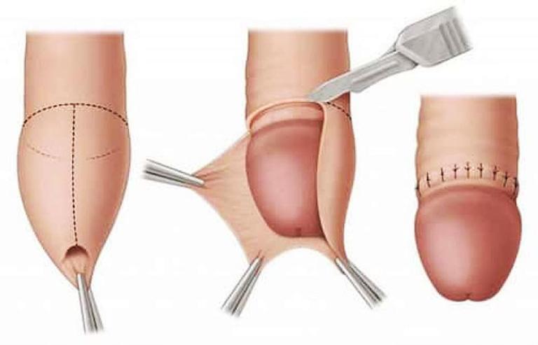 Phương án khắc phục hiệu quả nhất dành cho nam giới bị bao quy đầu dài là phương pháp cắt bao quy đầu, loại bỏ phần da thừa