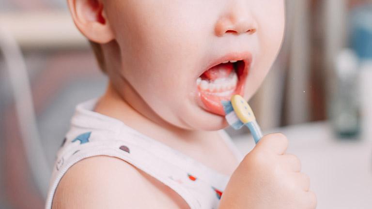 Bé 3 tuổi bị sâu răng cửa