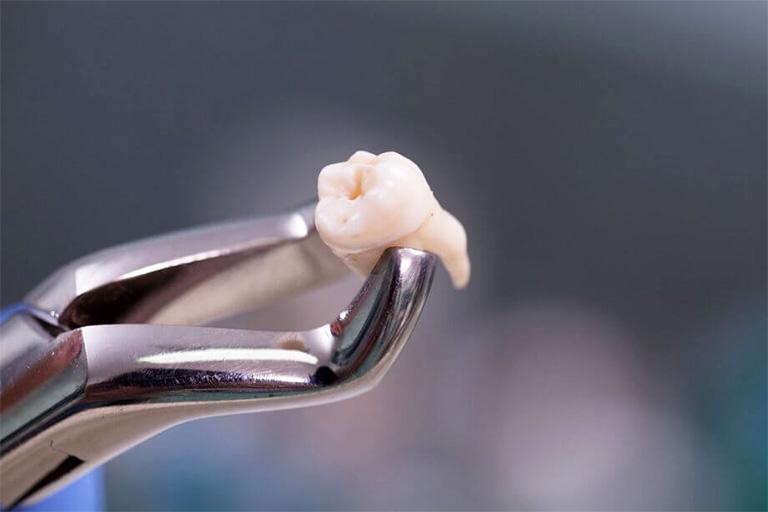 Nhổ răng là biện pháp cuối cùng trong việc điều trị bệnh áp xe răng