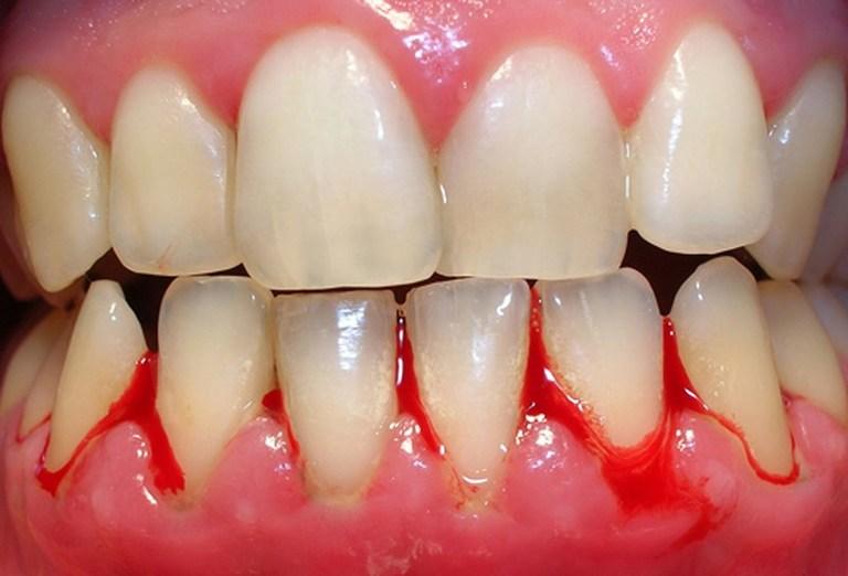 Bệnh lý gây chảy máu chân răng thường đi kèm với biểu hiện tụt lợi.