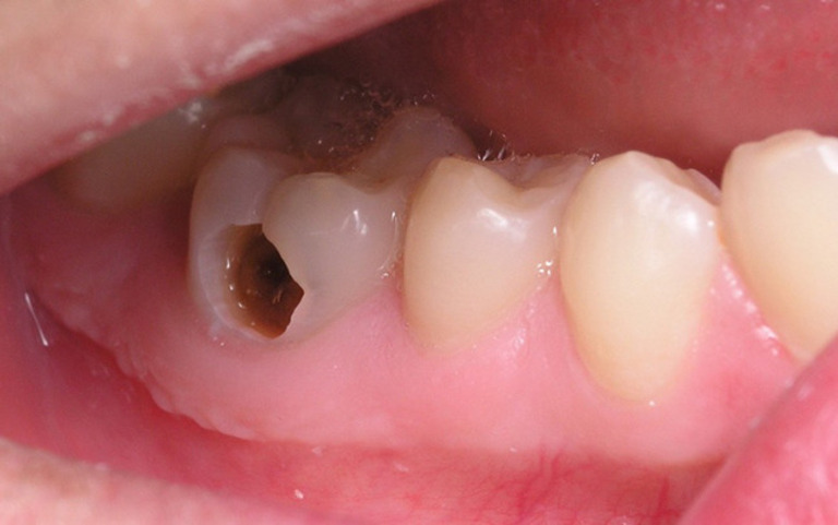 Sâu răng là một trong những bệnh lý thường gặp khiến răng bị ê buốt kéo dài.