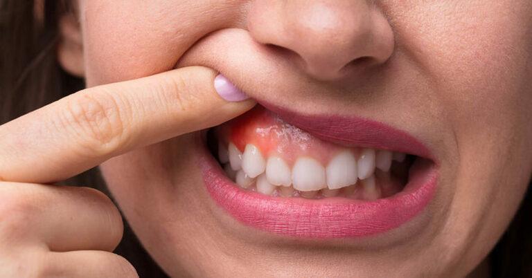Teo nướu răng do bệnh nha chu có thể gây nguy hiểm nếu không điều trị kịp thời. Biểu hiện ban đầu của bệnh là tình trạng sưng đỏ và chảy máu nướu.