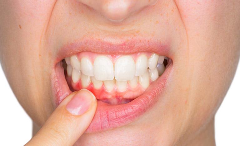 Viêm nha chu là bệnh răng miệng thường gặp khiến người bệnh cảm thấy đau nhức khó chịu