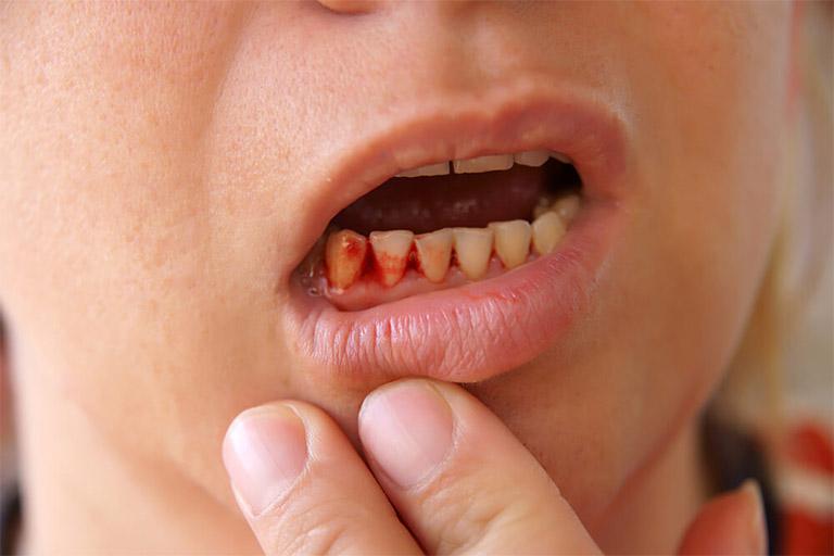 Chảy máu chân răng là một trong những trường hợp biến chứng nhẹ của bệnh viêm nha chu