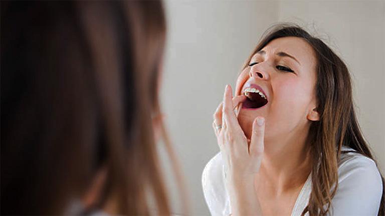 Răng lung lay hoặc mất răng là dấu hiệu của bệnh viêm nha chu đang tiến triển ở giai đoạn nặng