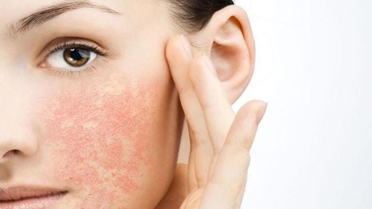 Da nhạy cảm thường bị ngứa và nổi mẩn đỏ khi bị kích ứng.
