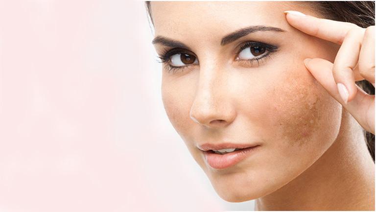 Nám da hỗn hợp là một trong những tình trạng nám da khó chữa nhất trong tất cả các loại nám da