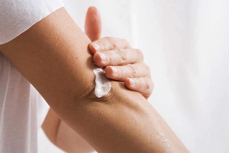 Trị nám da bằng kem dưỡng ẩm, kem bôi ngoài da hoặc thuốc bôi đặc trị