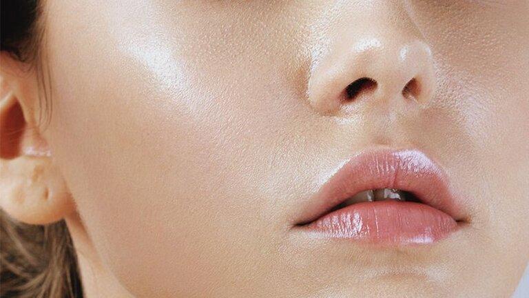 Da dầu phổ biến ở cả nam và nữ. Nó khiến da dễ nổi mụn và gây nhờn dính khó chịu.