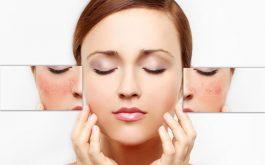 Da nhạy cảm khó chăm sóc nhưng điều đó không có nghĩa là bạn không thể có làn da khỏe đẹp.