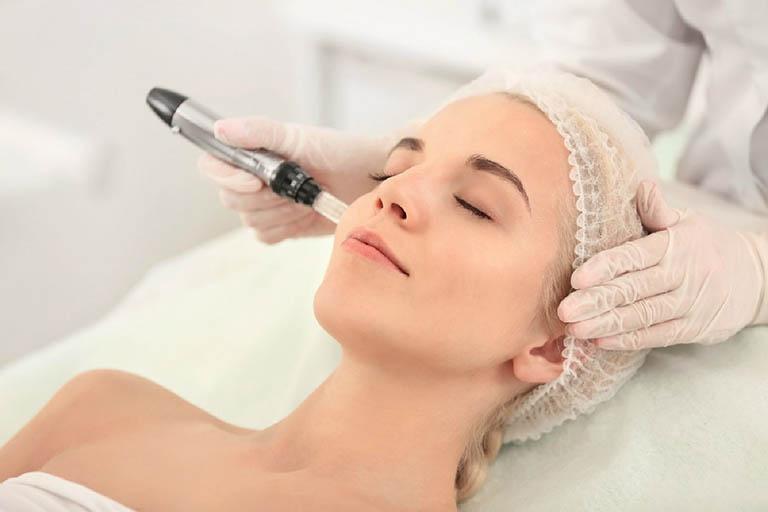 Cách chăm sóc da sau khi trị nám bằng laser và lưu ý