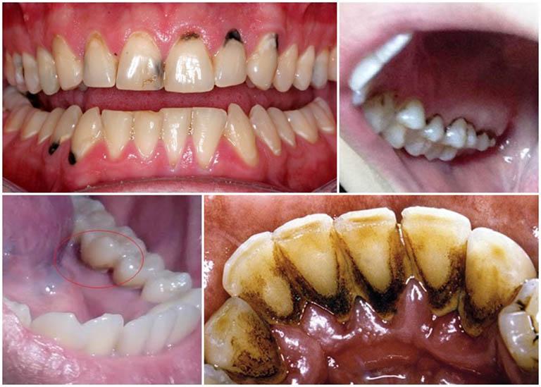 Chân răng bị đen do đâu? Có nguy hiểm không? Làm sao khỏi?