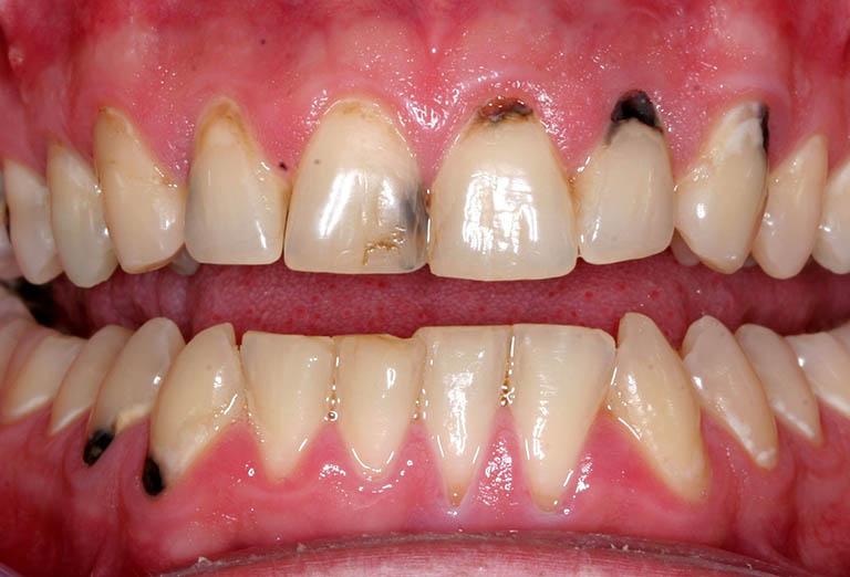 Chân răng bị đen có nguy hiểm không?