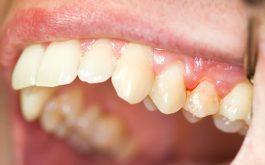 Chớ xem thường chảy máu chân răng không ngừng