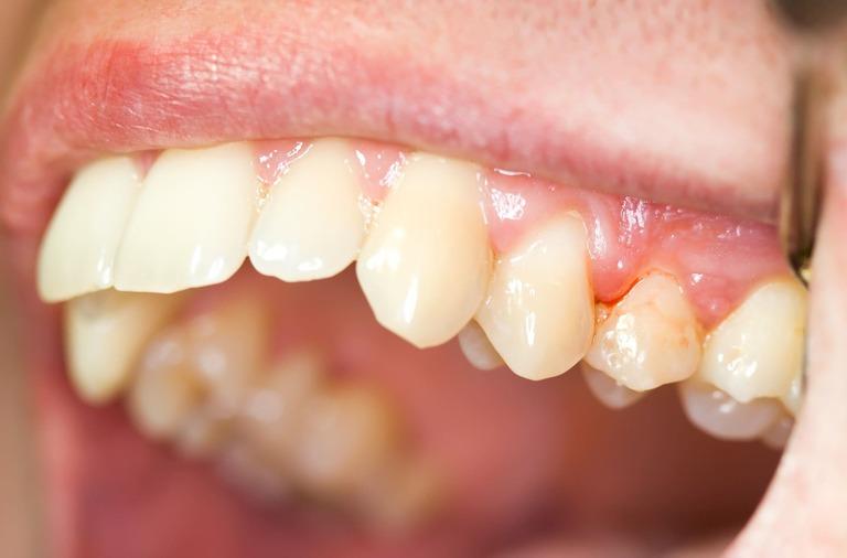 Chảy máu chân răng không ngừng: Nguy hiểm chớ xem thường