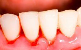 Chân răng bị chảy máu do bệnh lý thường gây nhiều hệ lụy khôn lường. Điều trị không khó nếu phát hiện sớm.