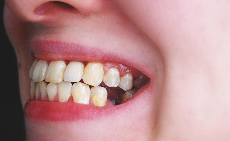 Chảy mủ chân răng