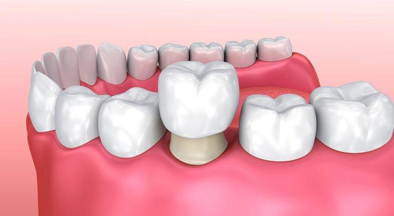 Vệ sinh chân răng, chữa nhiễm trùng tủy rồi bọc răng sứ là giải pháp ưu tiên hàng đầu trong những trường hợp răng hàm bị sâu chỉ còn chân.