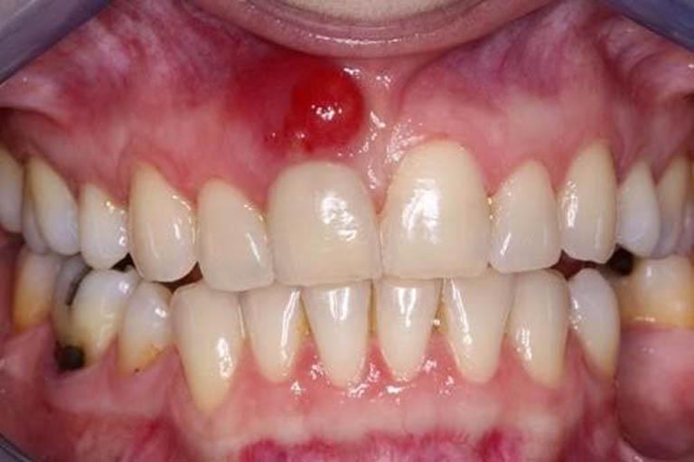 5 cách chữa viêm chân răng có mủ tại nhà từ các thảo dược