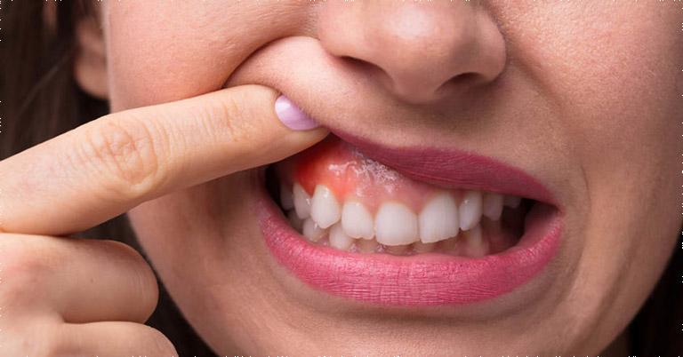 Người bệnh luôn mắc phải những cơn đau khó chịu vùng răng nướu khi bị viêm nha chu