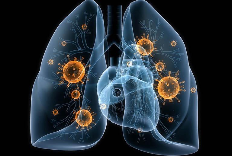Vấn đề về phổi