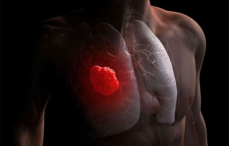 Đau lưng sau vùng phổi có nguy hiểm không