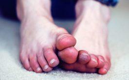 Đầu ngón tay, ngón chân tê đau như kim châm là bị gì?