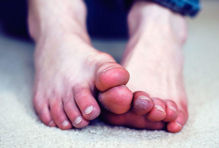 chân bị tê như kim châm