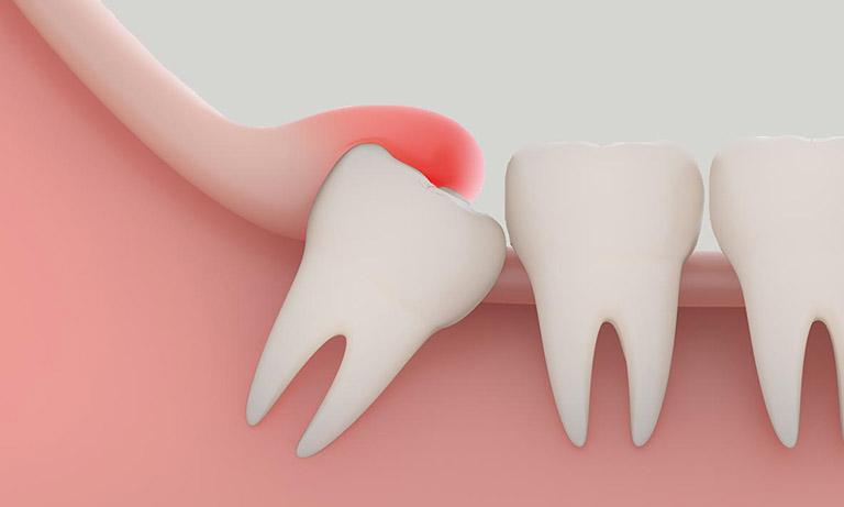 Đau nhức răng hàm dưới