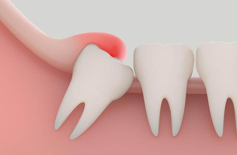Sự ảnh hưởng bởi răng khôn