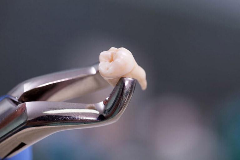 cách làm giảm đau răng khôn