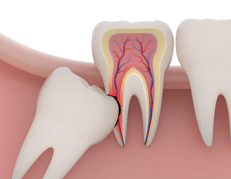 Răng khôn thường mọc lệch, mọc chèn ép vào các răng khác và gây ra không ít cảm giác đau đớn