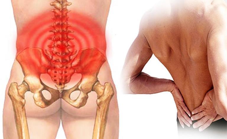 nguyên nhân đau thắt lưng trái ở nam giới