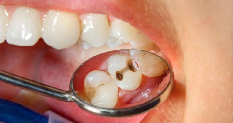 Ê buốt răng uống thuốc gì?