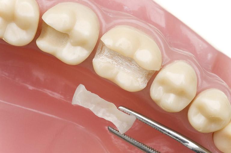 Hàn răng sâu