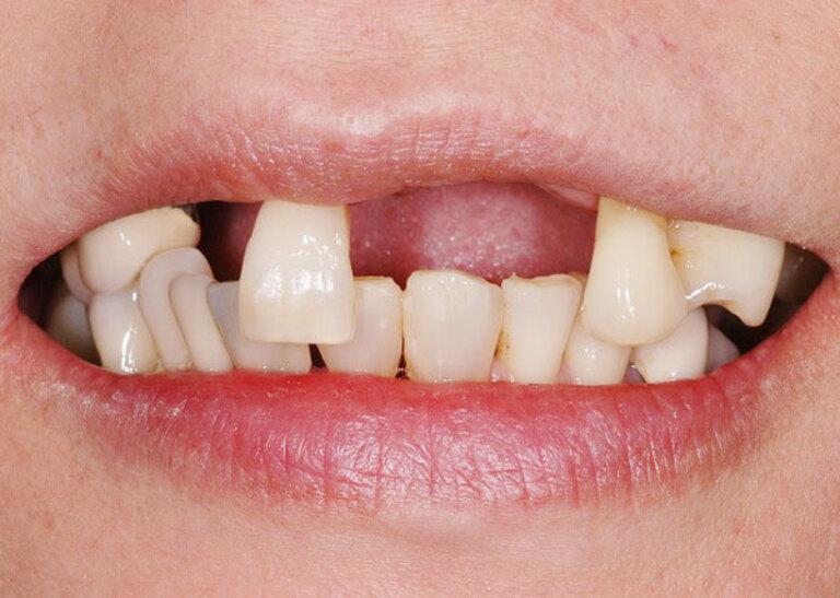 Ê buốt răng kéo dài trong một số trường hợp có thể dẫn đến rụng răng.