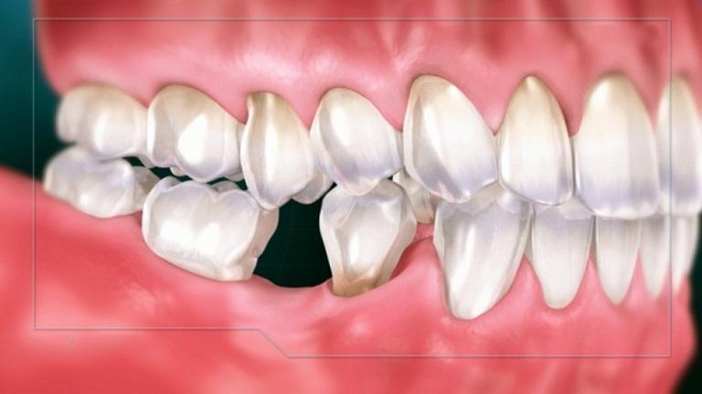 Đau răng hàm trong cùng chữa sai cách hoặc quá trễ sẽ mất răng vĩnh viễn. Đồng thời, tủy và xương hàm cũng sẽ bị ảnh hưởng.