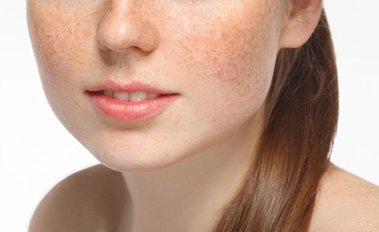 Nám da phổ biến ở nữ giới sau khi sinh con hoặc bước vào giai đoạn tiền mãn kinh.